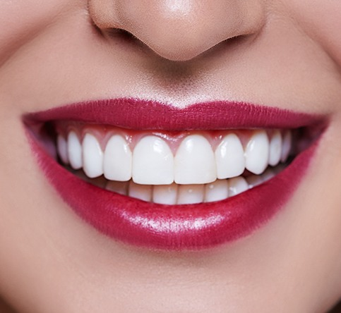 Closeup of healthy smile after gingivectomy